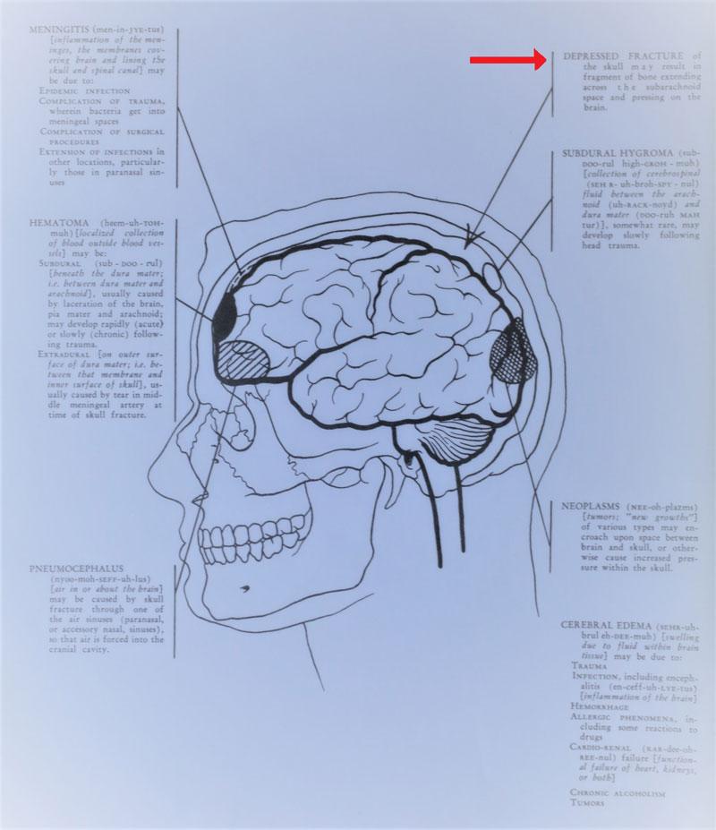 Broken Bone Lawyers: Kansas City Skull Fracture Law Firm